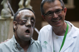Face transplant recipient Rafael poses with surgeon Tomas Gomez during a news conference at Virgen del Rocio hospital in Seville